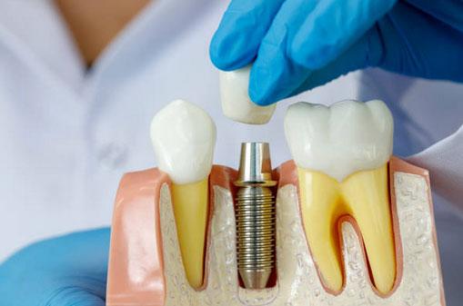 Dental Implants in Corbin, KY - Cumberland Falls Family Dentistry